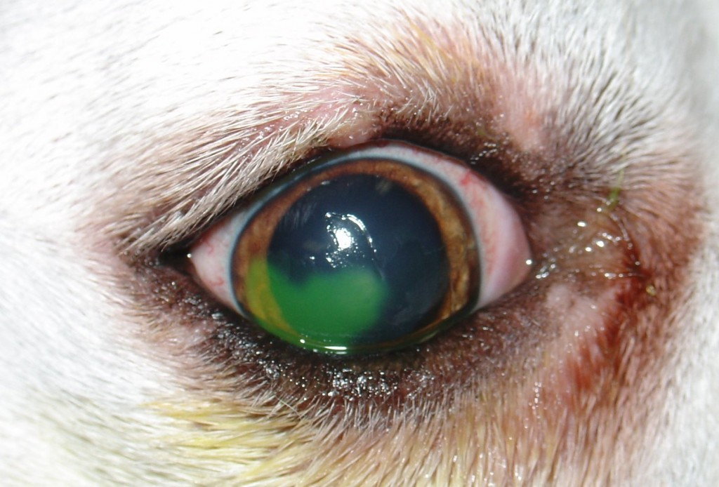 Refractory_corneal_ulcer